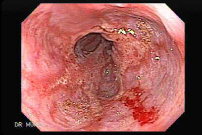 Severe Reflux Esophagitis and Hiatal Hernia