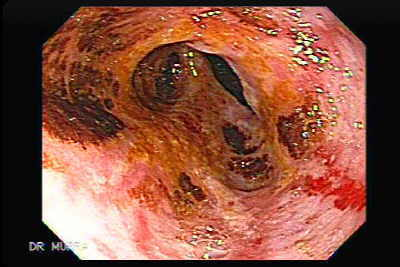 The image and the video clip display a large hiatus hernia