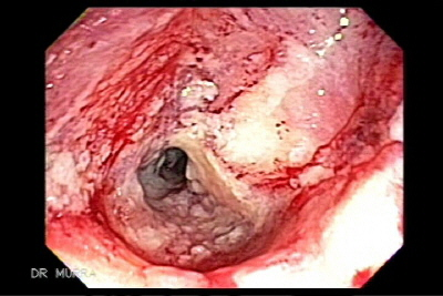 Colonoscopy of a Cancer of the Sigmoid Colon