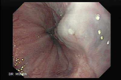 More image and video clip of the varix and it ulceration