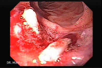 Video Endoscopic Sequence 23 of 23.