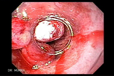 Endoscopic rubber band ligation in treatment of esophageal varices bleeding