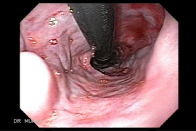 esophagus varices