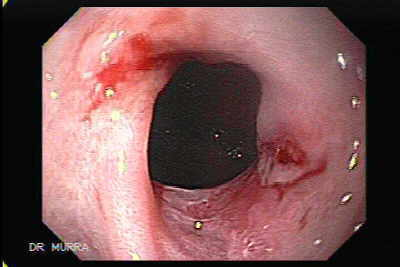 Peptic strictures are sequelae of gastroesophageal reflux–induced esophagitis,