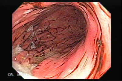 Endoscopy of Subepithelial Hemorrhages