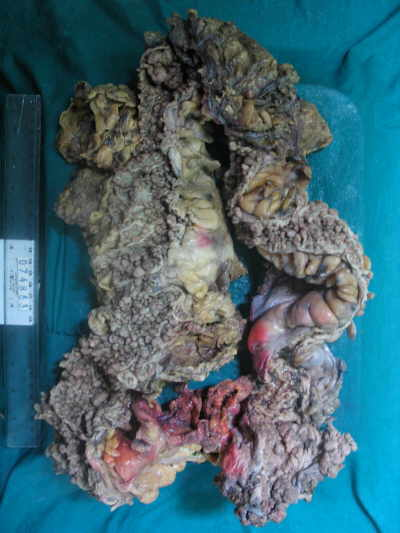 Surgical specimen of the colon after total colectomy with