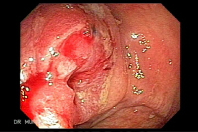Synchronous Carcinomas of the Colon
