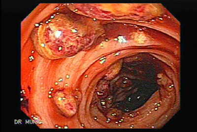 Toxic Dilatation of the Colon Superimposed pseudomembranous colitis