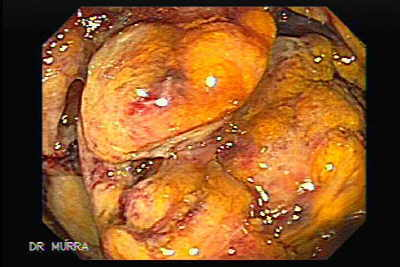 Superimposed pseudomembranous colitis involving the