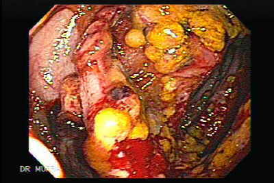 Toxic megacolon complicating pseudomembranous colitis