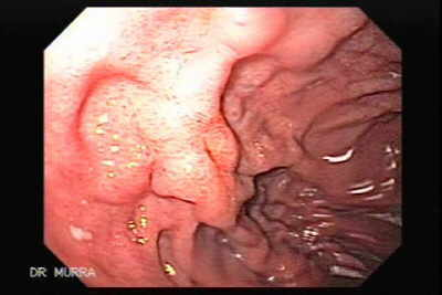Endoscopy of Giant Gastric Ulcer