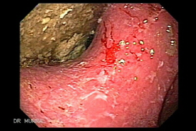Irregular gastric ulcers with scars