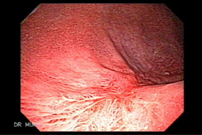 Endoscopy of Irregular gastric ulcers with scars