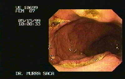 Endoscopic Image of multiple Gastric Ulcers