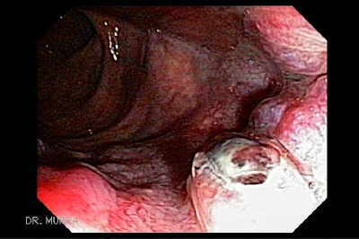 Video Endoscopic Image of Ulcerated Internal Hemorrhoid