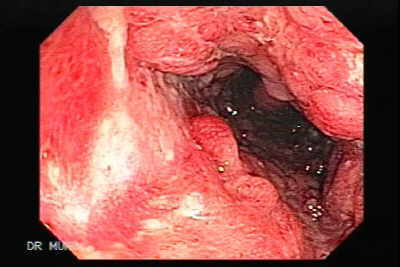 Random biopsies may reveal the changes of low grade or high grade dysplasia. The colonoscopist cannot usually distinguish flat dysplastic from normal mucosa, and the diagnosis therefore depends on the histopathological appearances. Dysplastic mucosa may however, be endoscopically visible as a DALM.