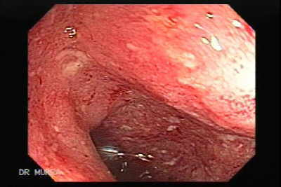 Endoscopic findings in ulcerative colitis