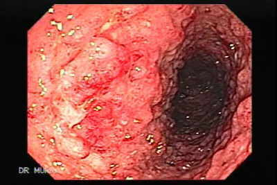 Endoscopic View of Ulcerative Colitis with Pseudopolyps