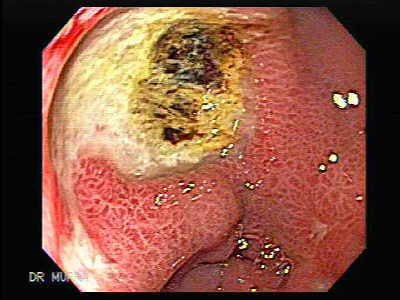 Multiple Gastric Ulcers.