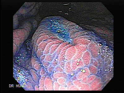Endoscopy of Multiple Gastric Ulcers.