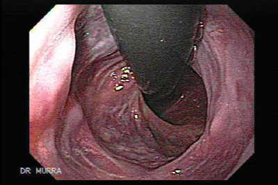 A retroflexed view of the esophagus is observed, the multiple scars of the status post banding are seen.