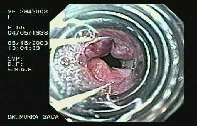 Banding of Esophageal Varices