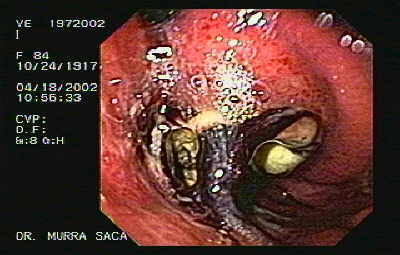 Gastric Adenocarcinoma of the Fundus.