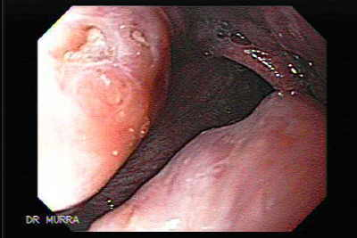 Enlarged Tonsils