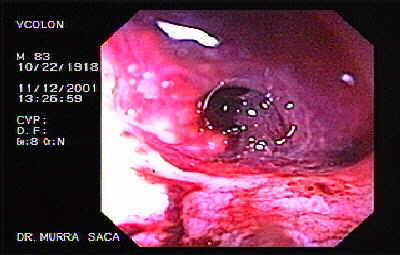 Lower gastrointestinal hemorrhage, due a diverticular