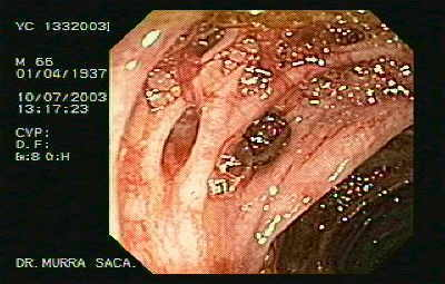 Diverticular bleeding.