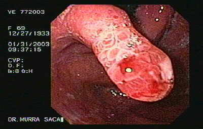 Hyperplastic Polyp of the Gastric Cardias.