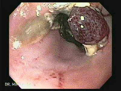 Endoscopy of Variceal ligation