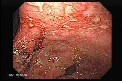 Primary gastric lymphoma following renal transplantation