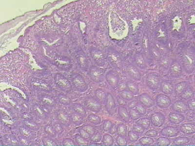 tubular pattern is shown with chronic inflammation at the surface of the polyp.