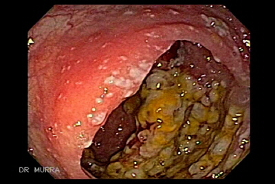 Pseudomembranous Colitis